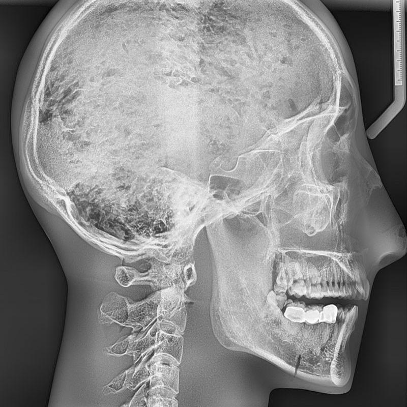 Dental X-Ray Head Phantom   Drupal